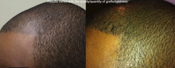 temporary hair loss solution, scalp tattooing, scalp tattoo for hair loss, scalp micropigmentation, SMP repair with FUE