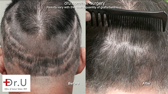 Botched hair transplant pictures: Dr. Umar repaired scarring from several strip surgeries.*