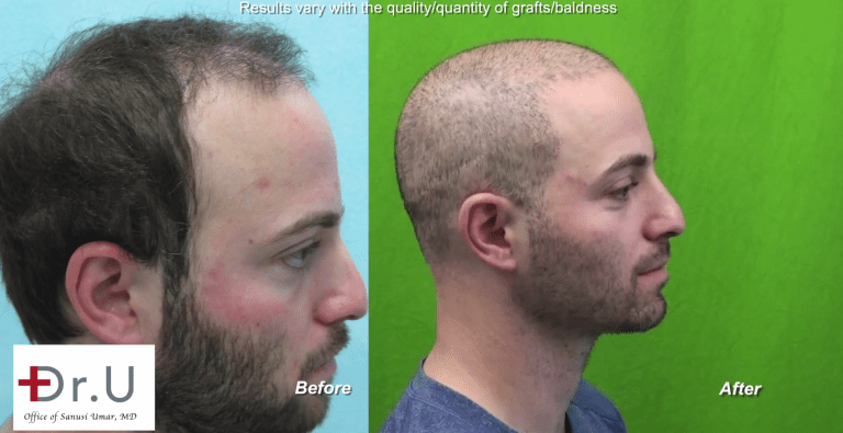 Is there a minimum age for a hair transplant? Dr U says No. This young age hair transplant patient found his solution from Dr.UGraft BHT Hair surgery which fixed his scar and baldness allowing for a buzz cut*