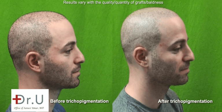Los Angeles Young Aged Hair Transplant Using Dr. UGraft: Before and After BHT and Scalp Micropigmentation integrated Approach For A Buzz Cut*