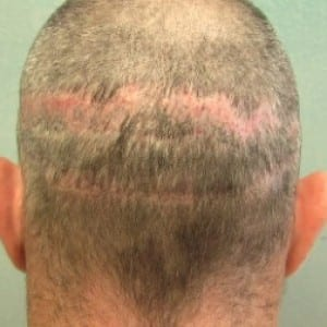Hair transplant surgery services: Hair transplant surgery scar before treatment by Dr. Umar