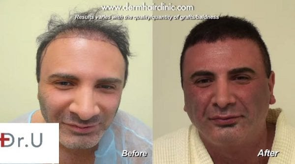 Dramatic bad hair transplants repair with the DrUGraft