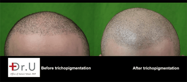 Temporary hair loss solution, scalp tattooing, scalp tattoo for hair loss, scalp micropigmentation,