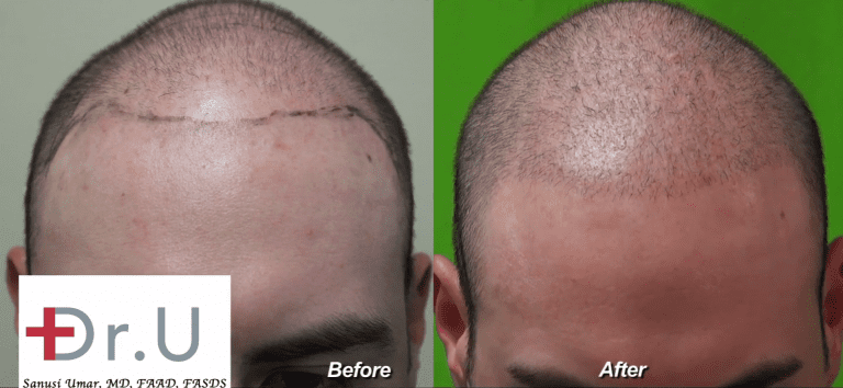 Los Angeles Young Adult Hair Transplant Using Dr.UGraft: Before and After a Less Is More Approach for a Low Budget Hair Transplant*