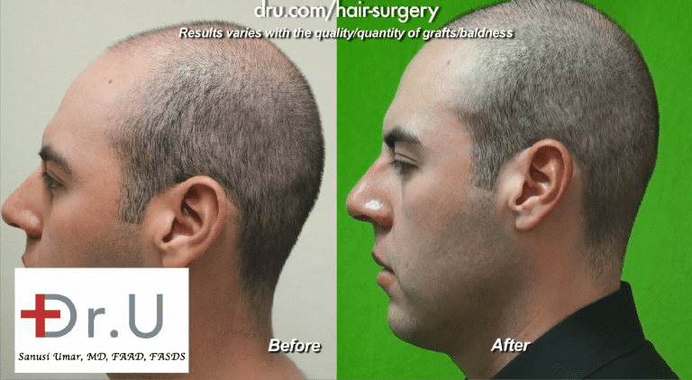 Best Age for a hair transplant: Dr.UGraft Method used by Dr U eliminates the need for defining a hair transplant age limit as discovered by this young adult Los Angeles patient*