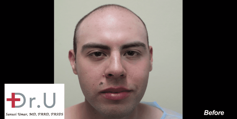 This patient began balding at a very young age. He came to Dr. Umar to help maintain his youthful appearance.