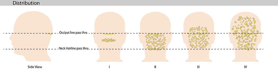 Acne keloidalis nuchae can spread from bumps on the back of the head and neck to bumps across the scalp.
