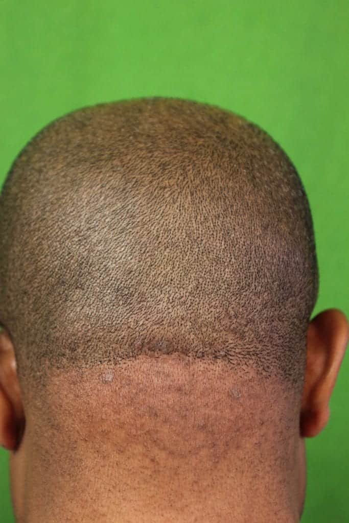 An early-stage AKN bump in the back of head treatment with laser result after two years