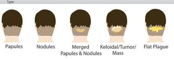 Knowing how to get rid of bumps without surgery on back of head caused by AKN begins with knowing the type of AKN you have using this classification system