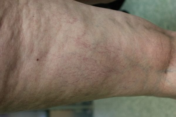What are varicose veins? This photo shows what typical spider veins look like.