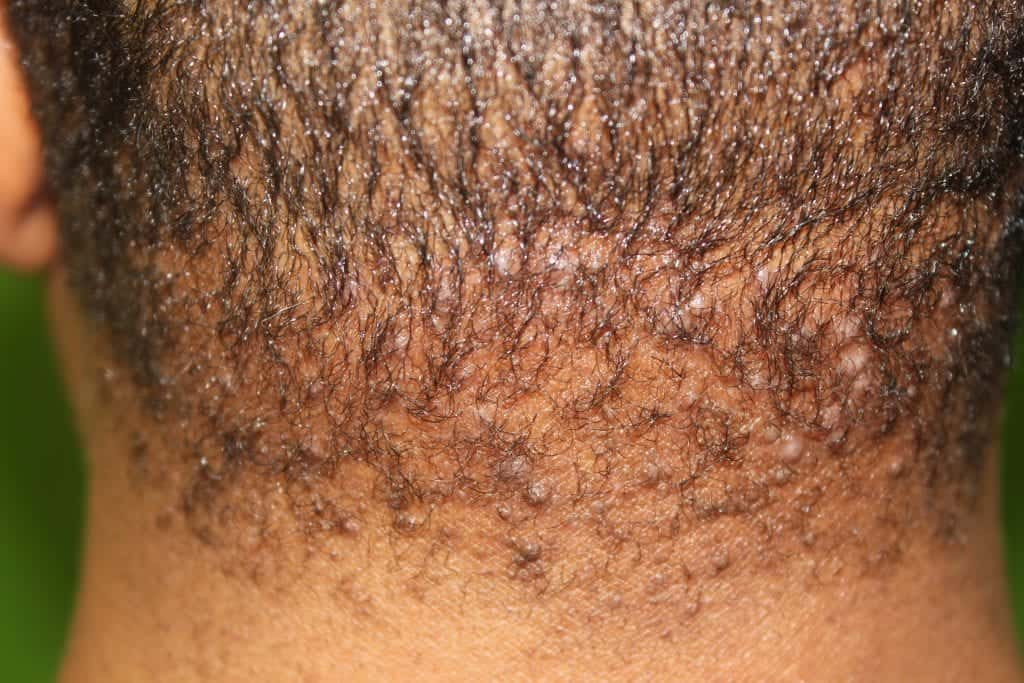 Patient before undergoing bumps on back of head laser treatment for AKN or acne keloidalis nuchae laser treatment