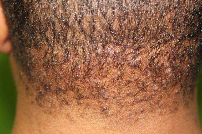 AKN can appear to resemble pimples or razor bumps on the back of the head and neck.