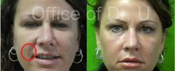 This is the before and after photo of a patient who used the dual Fraxel laser proceedure in order to get rid of brown spots