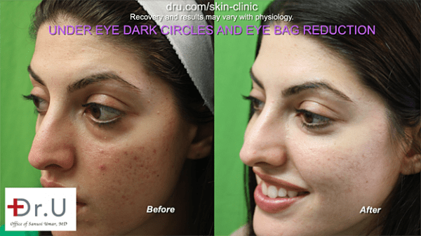 Thanks to receiving dark circles under eye treatment, this patient was able to have a refreshed, youthful look.