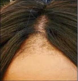 Hair loss can occur in anyone, regardless of ancestry. Fortunately, the DrUGraft can treat ethnic hair loss