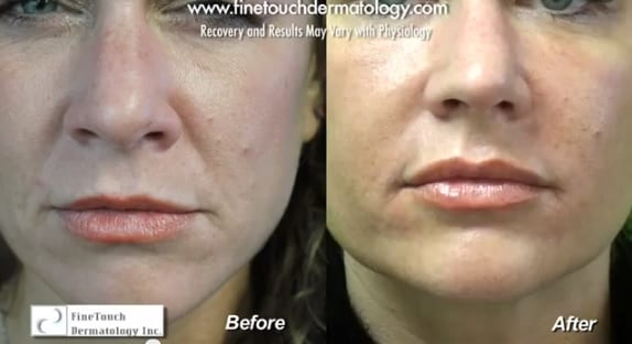 Before and after Radiesse facial filler treatment of laugh lines