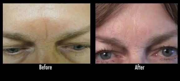 Results of Radiesse treatment for frown lines