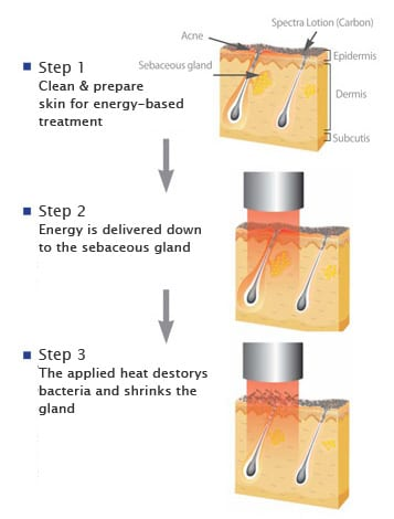 How Spectra laser treatment clears up active acne: Spectra levels out acne bumps by targeting sebaceous glands.