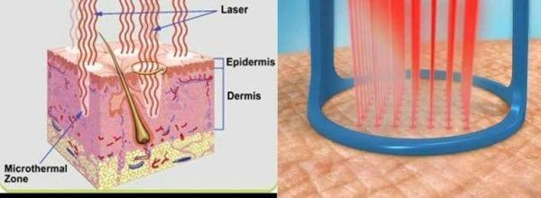 rejuvenated fraxel laser dual procedure example