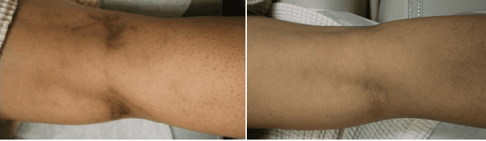 How to remove veins in legs: Dr. U generally recommends using the scelro therapy or laser treatment. Here is a leg vein removal before and after.