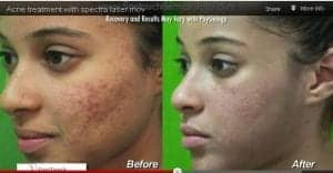 This Los Angeles patient successfully used laser skin treatment for acne to remove her pimples and acne scars.