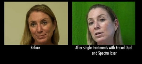 Before and after Spectra for age spots