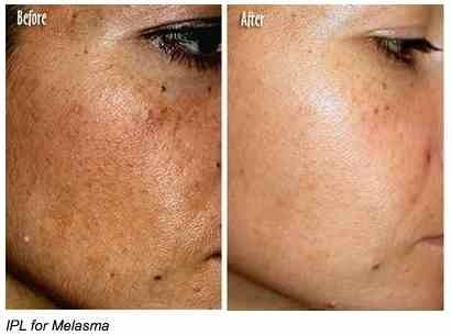 When considering melasma treatment options, laser treatment is highly effective.