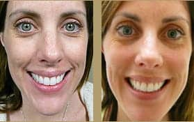 Patients dermal fillers before and after photo