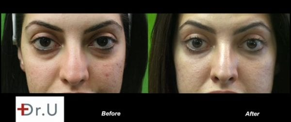 Before and after Radiesse treatment for the under eyes.