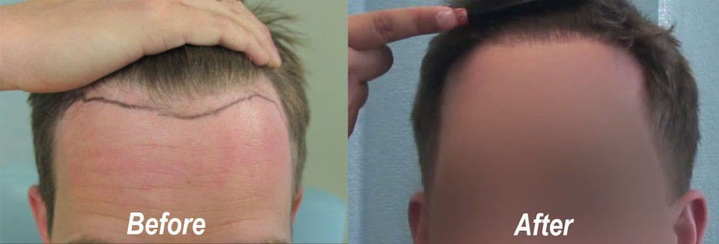 Receding hairline hair transplant before and after 1850 grafts