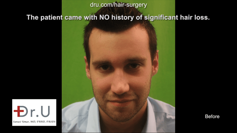 Dr.UGraft FUE Forehead Reduction by Hairline Using 3200 Grafts - Before