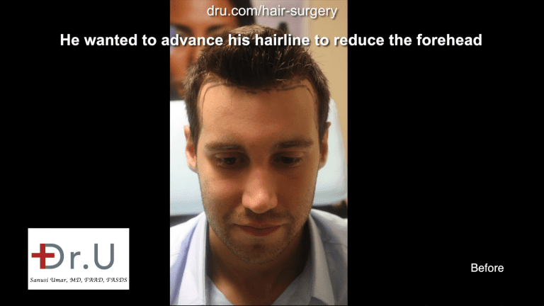 The patient wanted his hairline to cover more of the forehead and stronger temple points to match his new hairline.