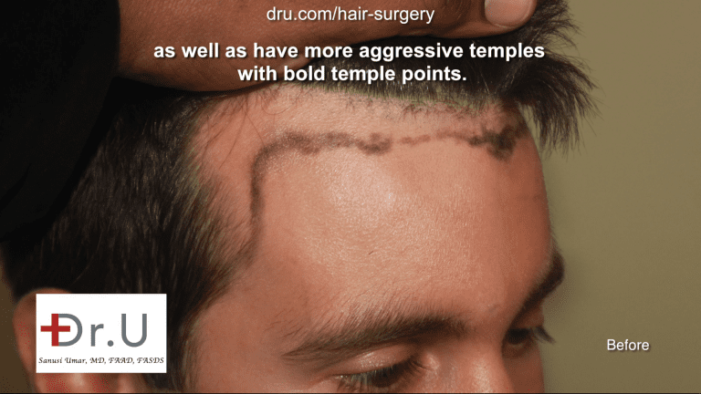 Hairline temple closure - Forehead reduction hairline transplantation