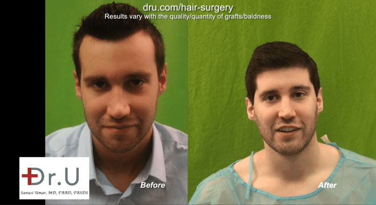 Before and After - FUE Forehead Reduction with DrUGraft
