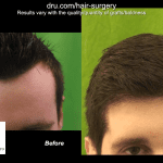 Norwood 1 Forehead Size Reduction hairline transplantation Before and After