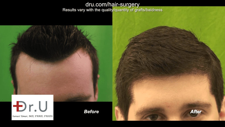 This lowered hairline from Dr. U's advanced DrUGraft FUE system had excellent results.