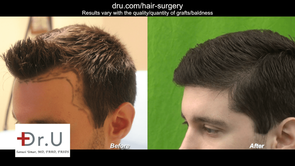 Follicular Unit Extraction FUE Hair Transplant Before and After Photos Of a Young DrUGraft Los Angeles Patient