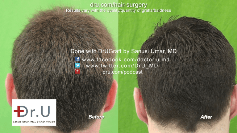 Back of Head Before and After Image - FUE Hairline Transplant Forehead Size Reduction Using 3200 Grafts
