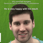 Patient Result Photo - Dr.UGraft Norwood 1 Forehead Size Reduction Hair Transplantation