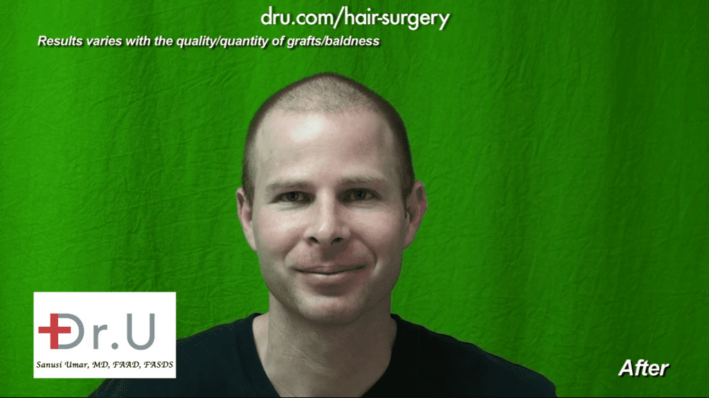 This patient is very happy with his transplant and healing process after hair transplant cost by less is more approach using Dr.UGraft