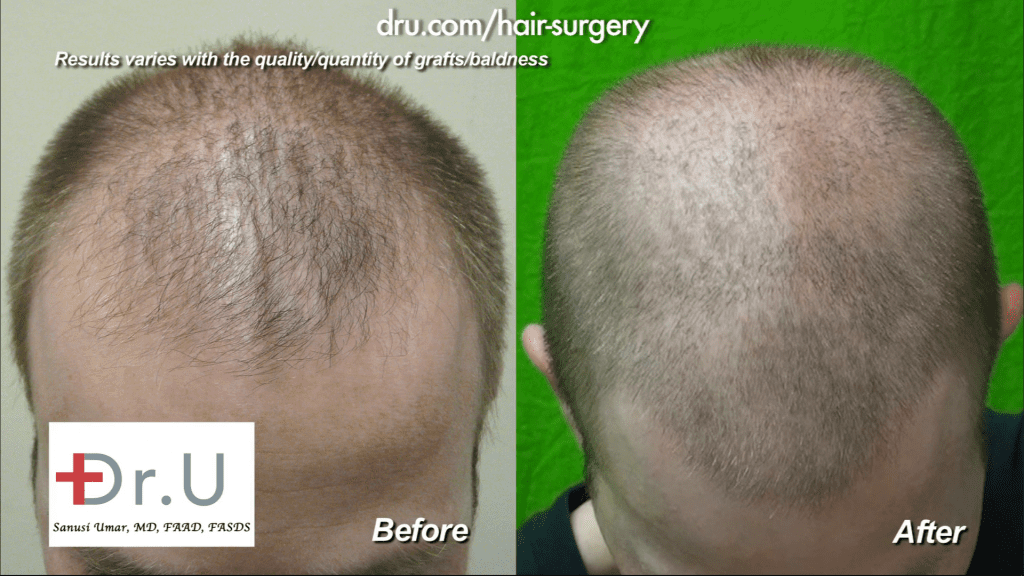 The patient's hair was evened out to create a more even distribution along the scalp. Note the areas of thinning along the temples have been improved dramatically.