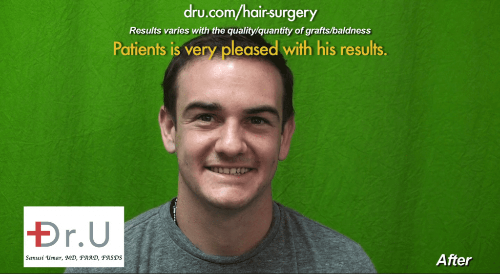 Failed strip surgery hairline transplant repaired