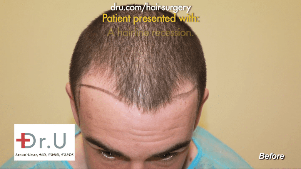 The patient and Dr. Umar to discover the ideal hairline that would match the patient's expectations.