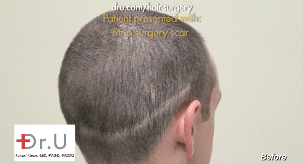 The patient's results from his previous strip surgery with a different surgeon. His scarring is very visible along the back of the scalp.
