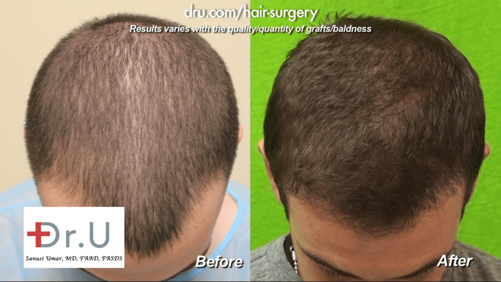 Failed strip surgery hairline transplant repair before and after photos