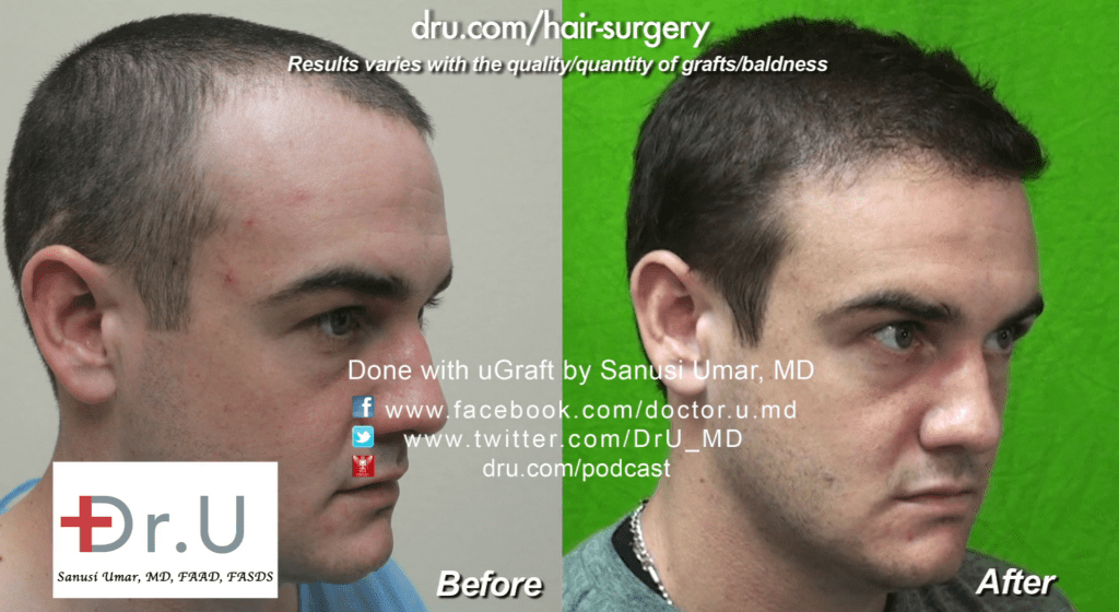 Failed Hairline transplant restored: 1500 Dr.UGrafts were split between the patient's temple and along the strip surgery scar on the back of his head.