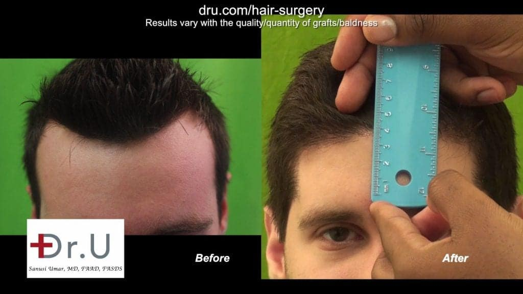 Dr. U showing the forehead size difference from his patient who underwent a hairline lowering FUE.