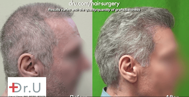 Before and After advanced FUE hair repair surgery