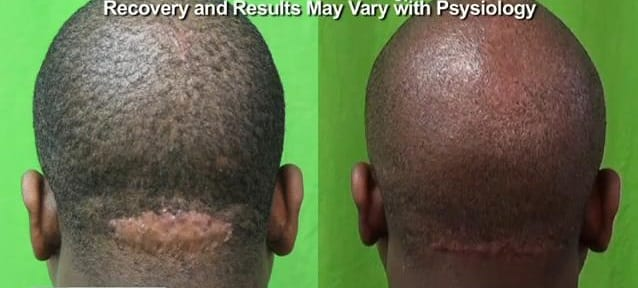 With a small lump on the back of the head, the surgical cure to AKN with Dr. U was highly successful, resulting in a discrete linear scar at the base of the neck.