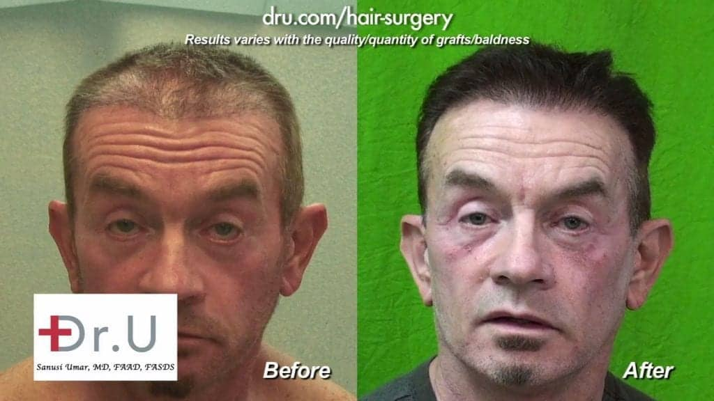 This patient in his 60's is very pleased with the new look of his hair after receiving a transplant by Dr. Umar and his advanced FUE technology.